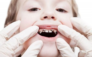 How-to-cavity-proof-your-childs-mouth